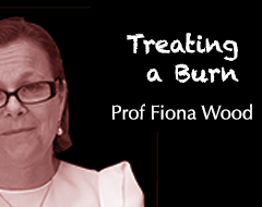 Science School – Treating a Burn